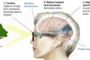 An illustration of how the technology works. Image: Bionic Vision Australia