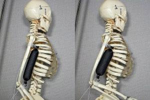 The artificial muscle in use as a bicep lifts a skeleton's arm to a 90 degree position. Photo: Aslan Miriyev/Columbia Engineering